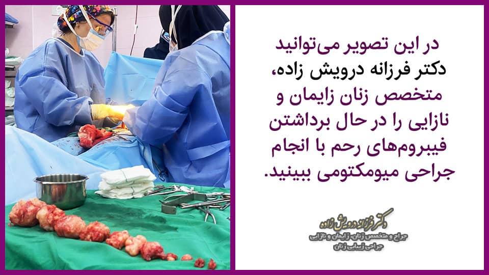 بهترین جراح فیبروم در تهران